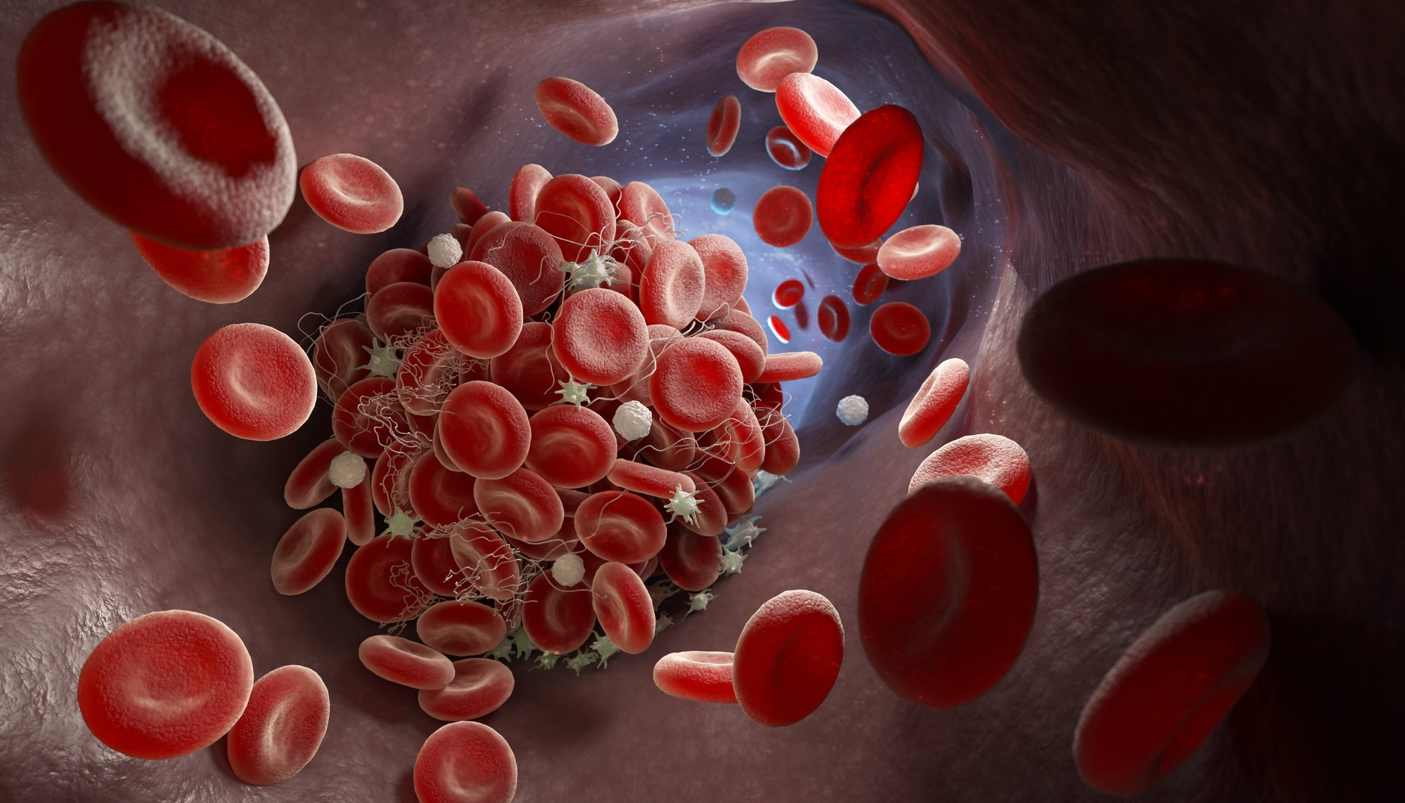 7 Foods To Prevent A Deadly Blood Clot